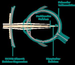 Funktionsweise der D.I.M.S. Technologie von MiYOSMART